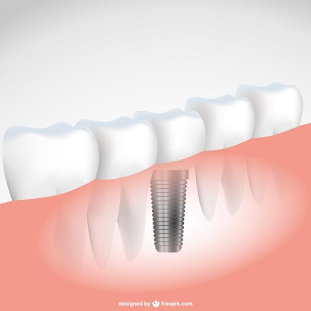 Napredne zobozdravstvene storitve v Sloveniji