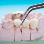 Prave rešitve za težave z zobmi